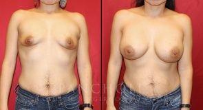 Breast Augmentation 3536
