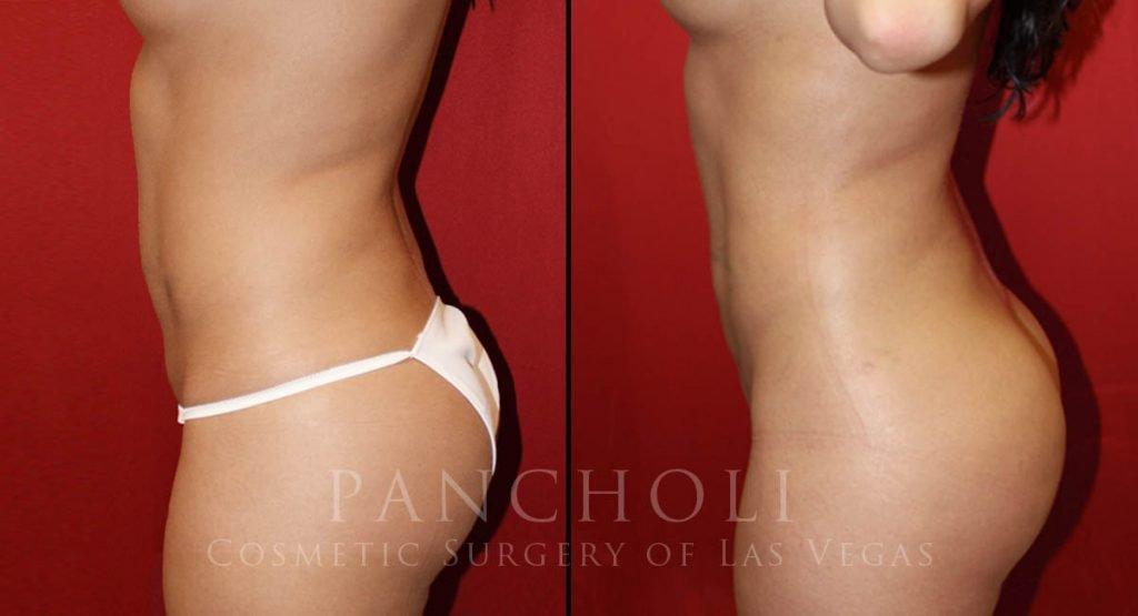 Liposuction 4481
