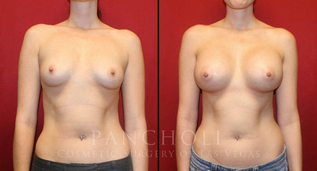 Breast Augmentation 5905