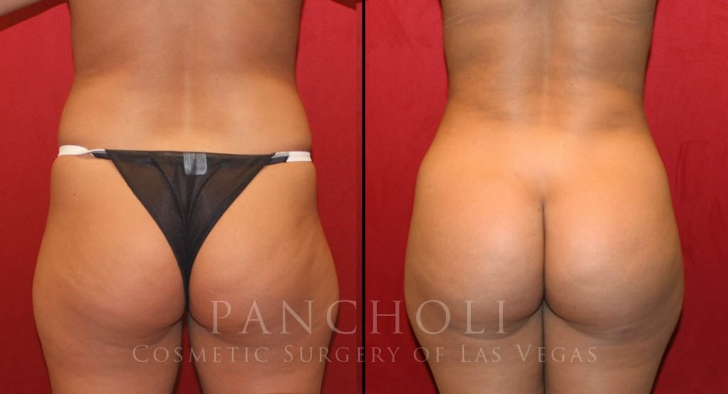Brazilian Buttlift and Liposuction 6034