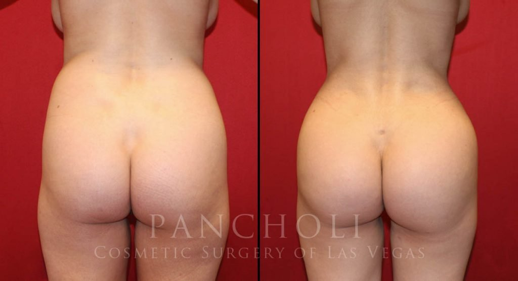 Brazilian Buttlift and Liposuction