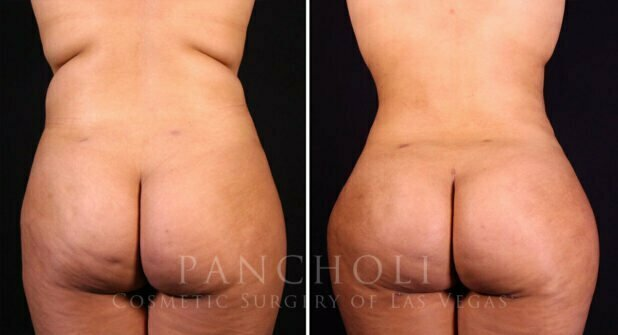 Liposuction Before and After Gallery