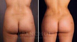 Liposuction and Brazilian Butt Lift
