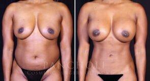 Breast Augmentation 21726